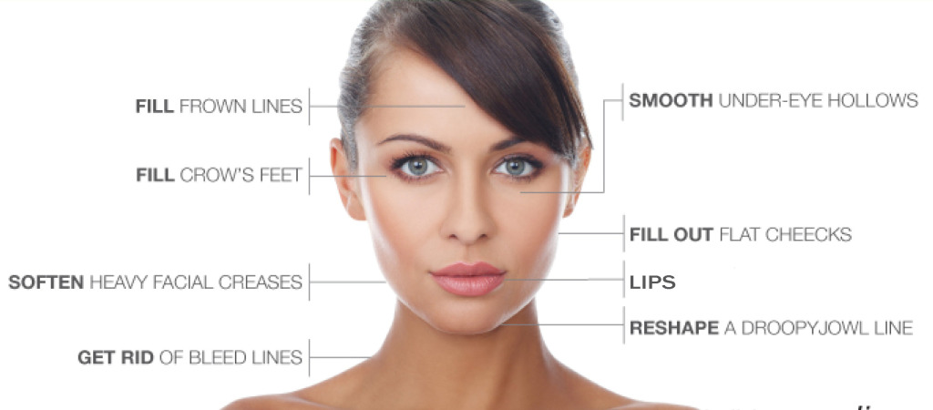 juvederm areas 2